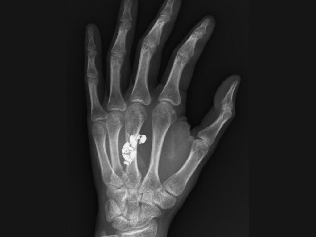 Radiografía de la mano izquierda. Se aprecia un perdigón desintegrado justo al centro, a la altura del tercer metacarpiano.